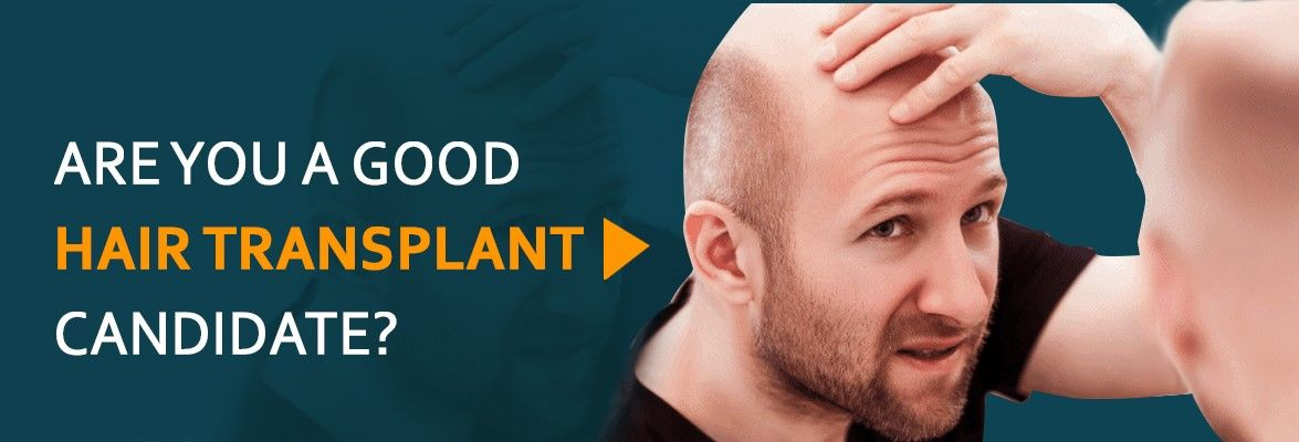 good hair transplant candidate
